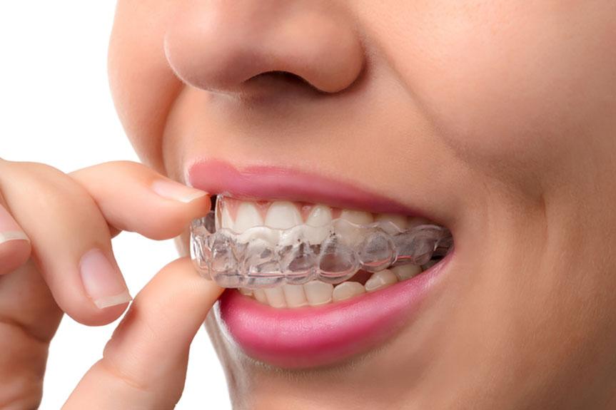 plastik diş teli